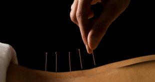 الطب الصيني , افضل طرق العلاج التقليدية