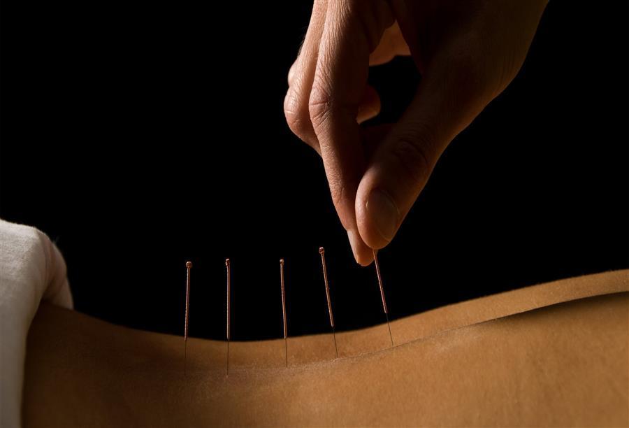 صوره الطب الصيني , افضل طرق العلاج التقليدية