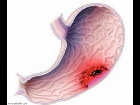 بالصور اعراض سرطان المعدة , اهم عرض لسرطان المعدة 2298