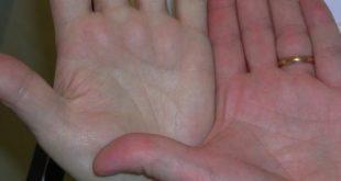 بالصور مرض فقر الدم , اهم علاج الانيميا 2372 2 310x165