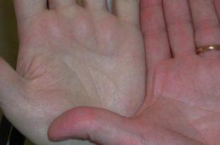 صورة مرض فقر الدم , اهم علاج الانيميا
