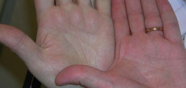 صوره مرض فقر الدم , اهم علاج الانيميا