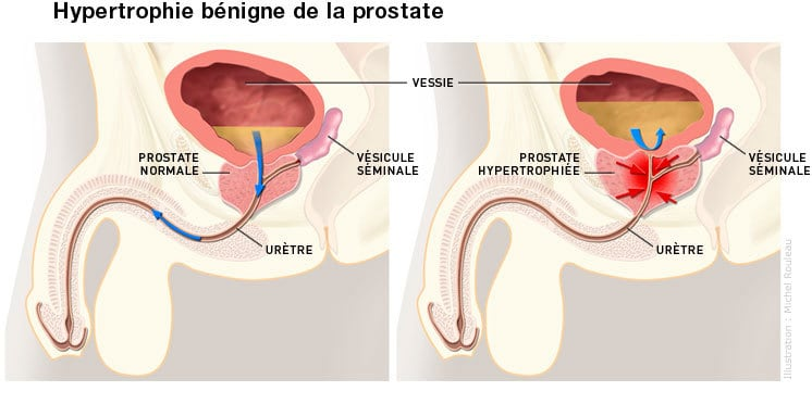 صورة اسباب تضخم البروستاتا , اكثر مسبب للبروستاتا