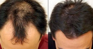 علاج لتساقط الشعر , وصفة لكثافة الشعر في اسبوع