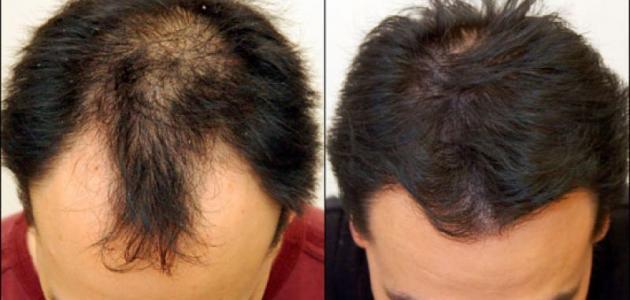صور علاج لتساقط الشعر , وصفة لكثافة الشعر في اسبوع