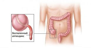 اعراض الزائدة الدودية , اهم اعراض التهاب الزائدة الدوية