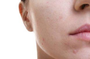 صورة ازالة حبوب الوجه , افضل طريقة لعلاج للحب الشباب