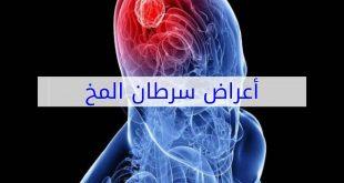 اعراض سرطان الدماغ , كيفيه تشخيص ورم المخ