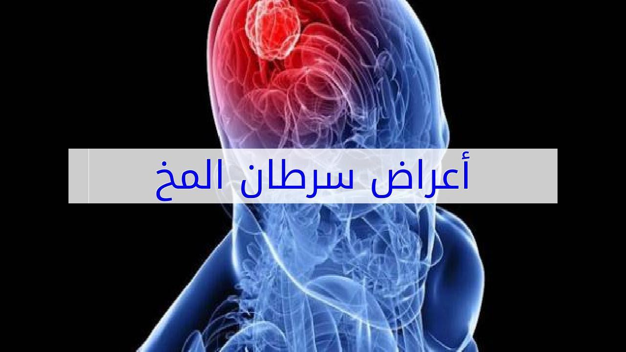 صوره اعراض سرطان الدماغ , كيفيه تشخيص ورم المخ
