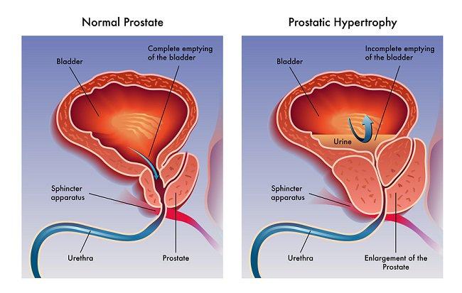 صورة علاج البروستاتا , كل مايهم الرجال بخصوص البروستاتا