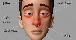صور اعراض حساسية الانف , ما اسباب التهاب الانف التحسسي