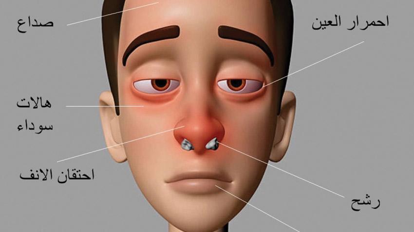 صورة اعراض حساسية الانف , ما اسباب التهاب الانف التحسسي