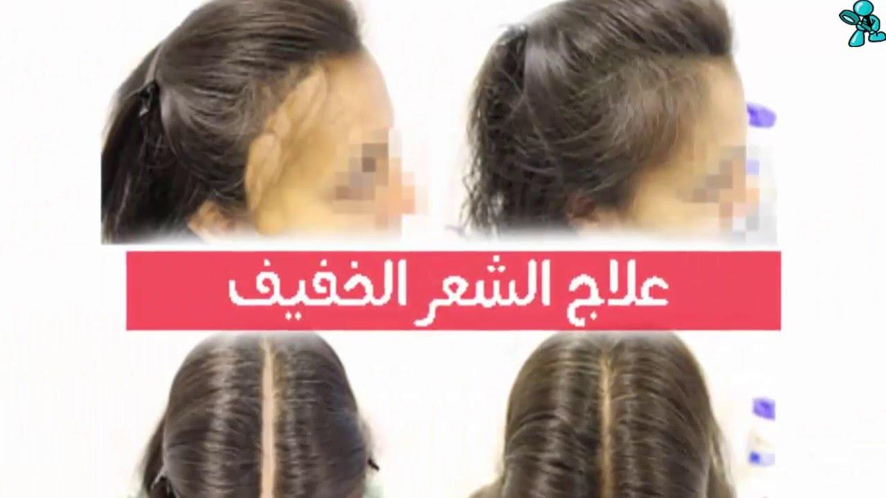 صورة شعري خفيف , وصفات لكثافة الشعر 2939