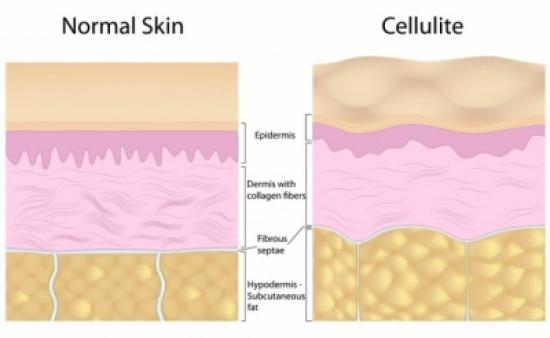صورة ما هو السيلوليت , معلومات صحيه عن السيلوليت