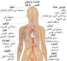 بالصور مرض الغدة الدرقية , اعراض الغدة الدرقية 3226 4