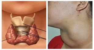 بالصور مرض الغدة الدرقية , اعراض الغدة الدرقية 3226 5