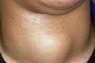 صورة مرض الغدة الدرقية , اعراض الغدة الدرقية