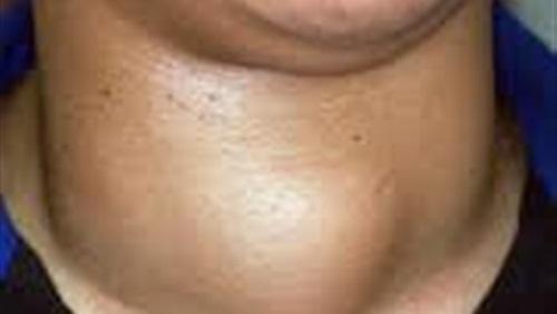 بالصور مرض الغدة الدرقية , اعراض الغدة الدرقية 3226
