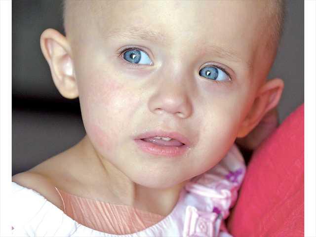 بالصور اعراض مرض السرطان , اخطر امراض العصر 3847 1