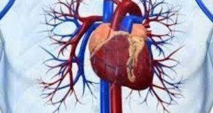 بالصور علاج مرض القلب , امراض اكثر خطورة 3918 2 310x165