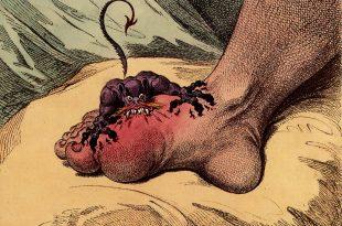صورة مرض الطاعون , نبذه عن مرض الطاعون