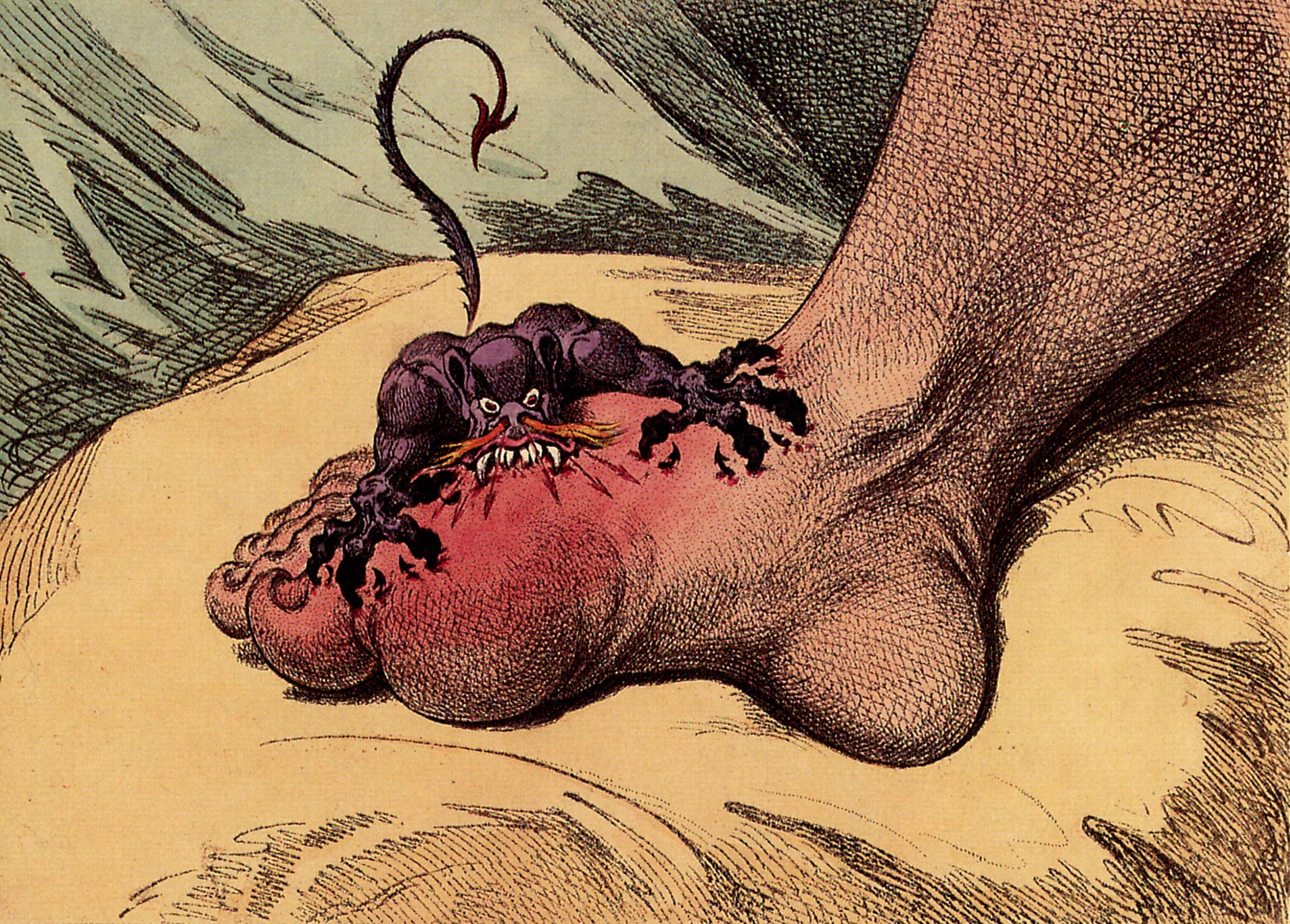 صور مرض الطاعون , نبذه عن مرض الطاعون