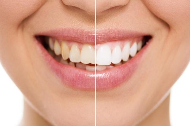 صور كيفية تبييض الاسنان , طرق سهله لتبييض الاسنان