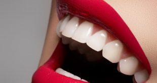 صوره كيفية تبييض الاسنان , طرق سهله لتبييض الاسنان