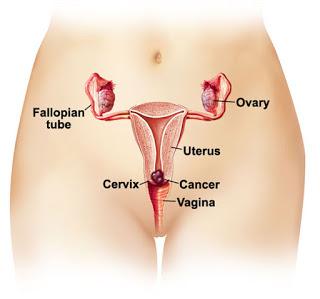 صورة اعراض سرطان الرحم , علامات تدل على وجود سرطان الرحم