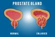 صور علاج تضخم البروستاتا , , علاج تضخم البروستاتا بطرق طبيعيه
