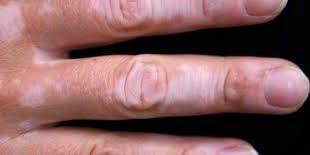 صورة مرض البهاق , اعراض مرض البهاق