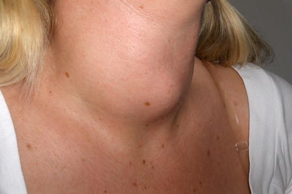 صورة اعراض قصور الغدة الدرقية , الاعراض الشائعة للغدة الدرقية