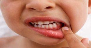 صوره اعراض نقص الكالسيوم , علامات نقص الكالسيوم في الجسم