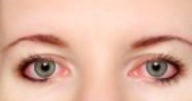 بالصور علاج حساسية العين , علاج حساسية العين بسيط وبشكل نهائي 4162