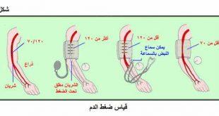 اسباب ارتفاع ضغط الدم , احذر ارتفاع ضغط الدم