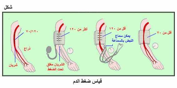 بالصور اسباب ارتفاع ضغط الدم , احذر ارتفاع ضغط الدم 4199