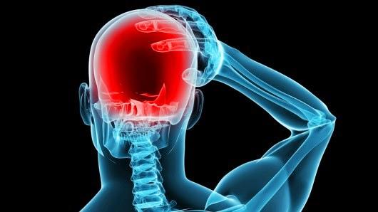صورة مرض الشقيقة , اسباب واعراض وعلاج الصداع النصفي