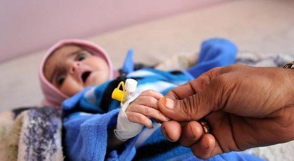 بالصور اعراض مرض الكوليرا , فيلم وثائقى قصير عن مرض الكوليرا 4606 3