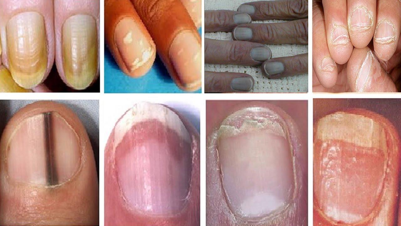 صوره امراض الاظافر , حدوث خلل للاظافر