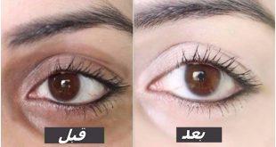 صور الهالات السوداء تحت العين , احدث الطرق لعلاج الهالات السوداء تحت العين