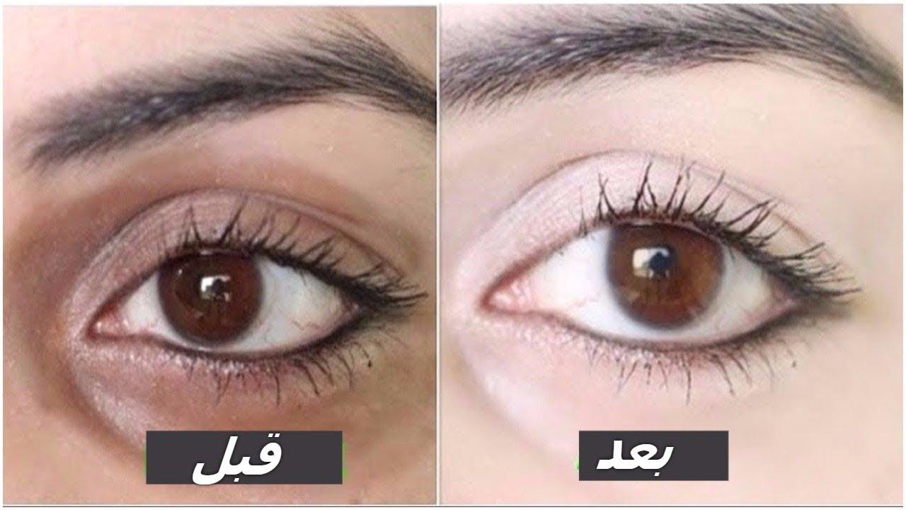 صورة الهالات السوداء تحت العين , احدث الطرق لعلاج الهالات السوداء تحت العين