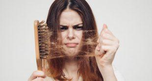 صوره تساقط الشعر , اسباب وعلاج تساقط الشعر