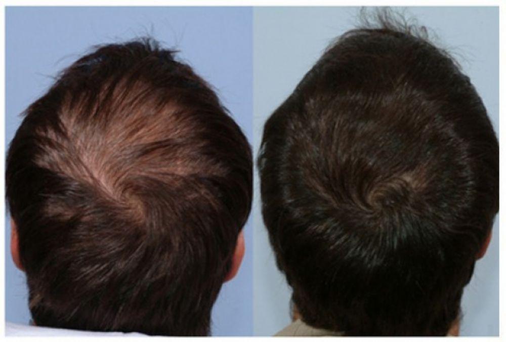 صوره علاج الصلع الوراثي , علاج الشعر الخفيف