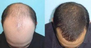 علاج الصلع الوراثي , علاج الشعر الخفيف