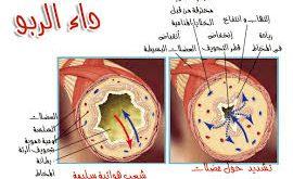 بالصور مرض الربو , ماذا تعرف عن مرض الربو 394 3 270x165