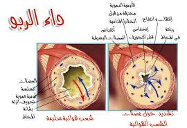 صورة مرض الربو , ماذا تعرف عن مرض الربو