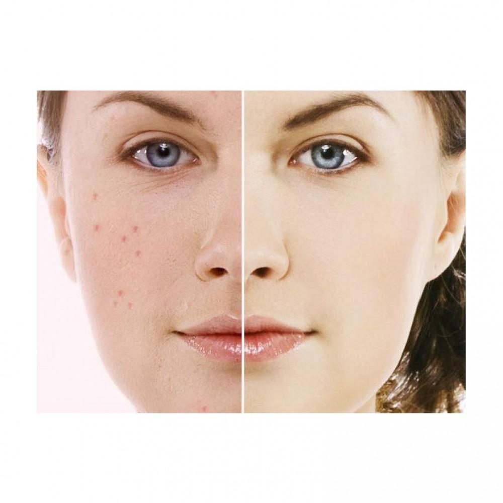 صوره توحيد لون البشرة , ازاي تحافظي على بشرتك
