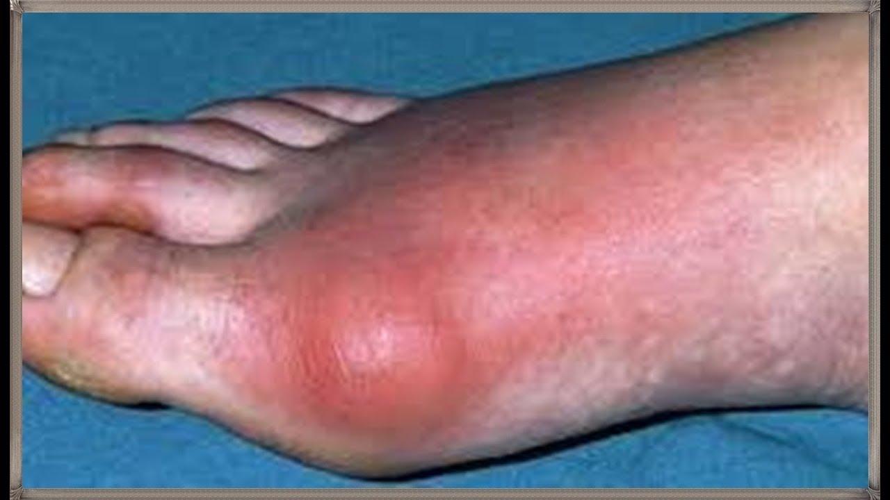 بالصور ما هو مرض النقرس , كيفيه علاج مرض النقرس 5081 2