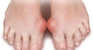 بالصور ما هو مرض النقرس , كيفيه علاج مرض النقرس 5081 3 310x165