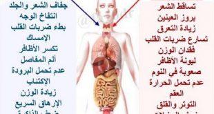 بالصور اعراض الغدة الدرقية , كيف تعرف الشخص المصاب بالغده الدرقيه 512 3 310x165